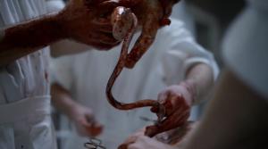Knick-intestines